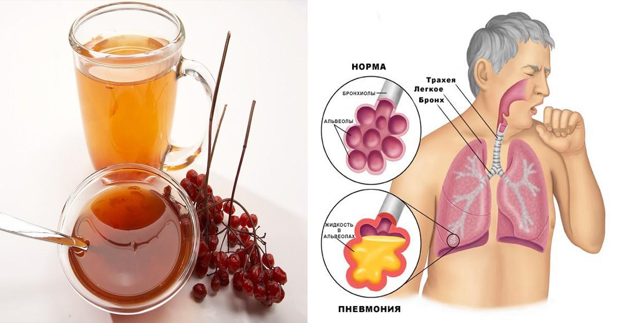 Воспаление лёгких симптомы у взрослых и лечение народными средствами