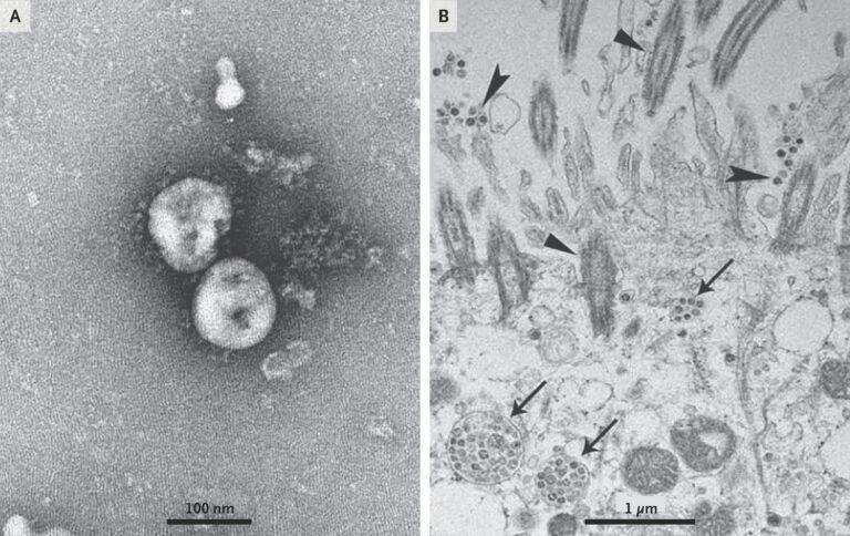 Вакцина от коронавируса из Китая разработана заявили ученые!