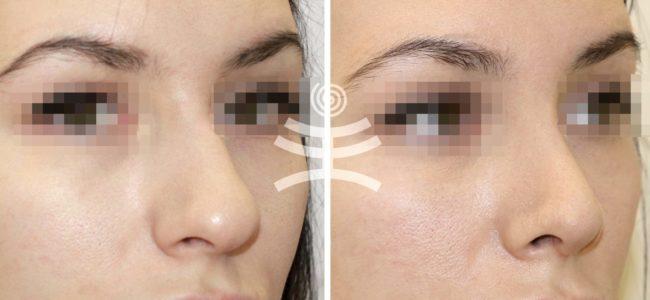 Как можно убрать горбинку на носу без операции?